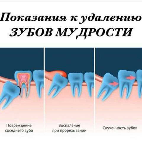 Как восстановить чувствительность языка после удаления зуба мудрости