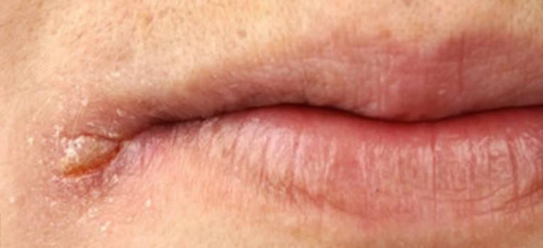 Заеды в уголках рта