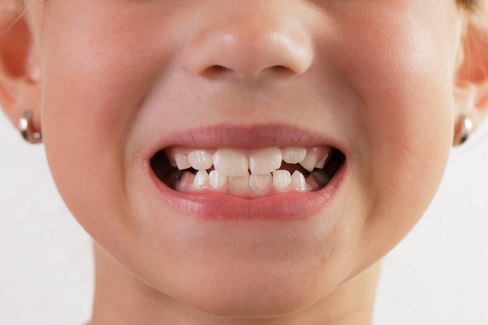У ребенка выпал молочный зуб (а новый не растет): что делать