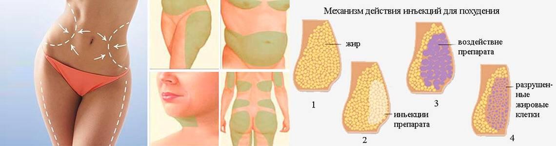 Липолитики для похудения: отзывы, реабилитация