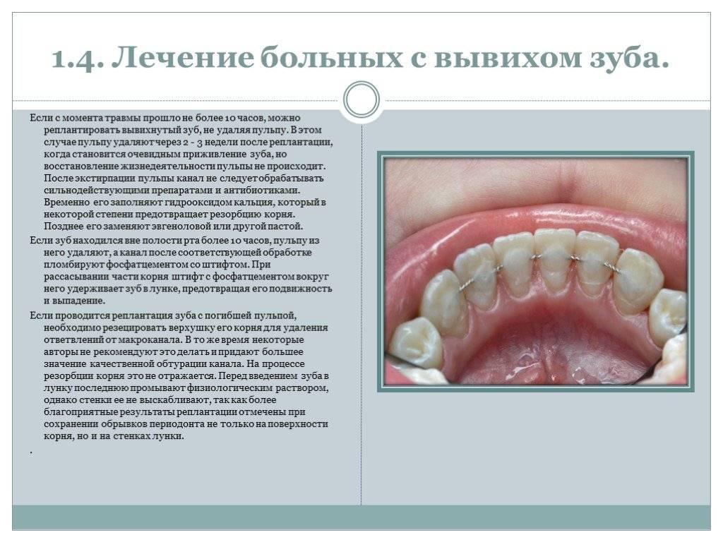 Вывих зуба: профилактика, возможные последствия и методы лечения