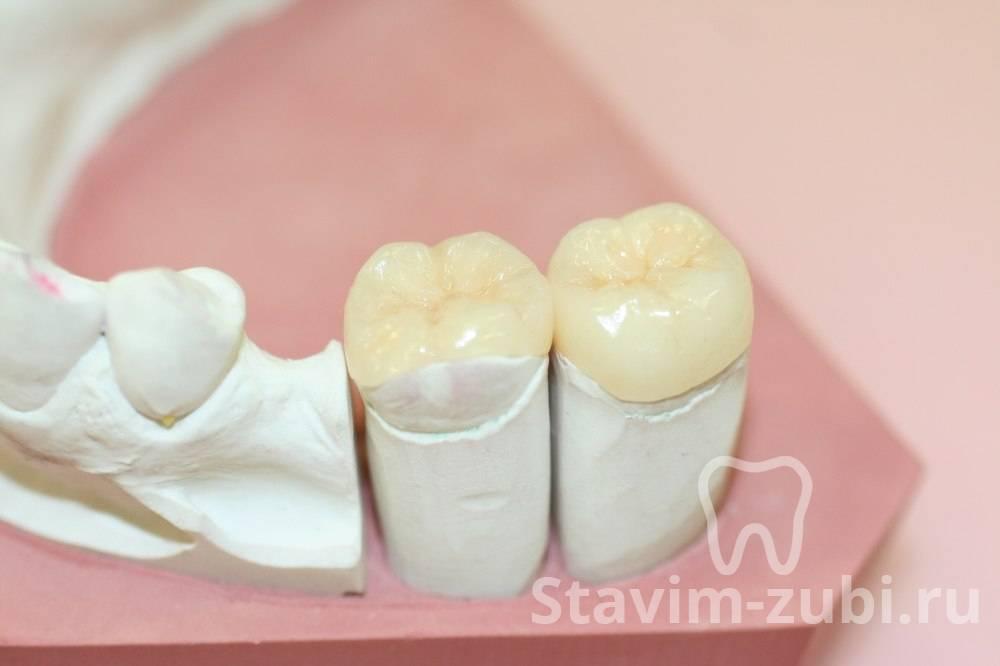 Обзор зубных культевых вкладок под коронку в стоматологии: фото, подготовка и изготовление