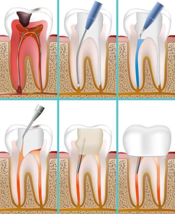 Гноится десна после удаления зуба что делать