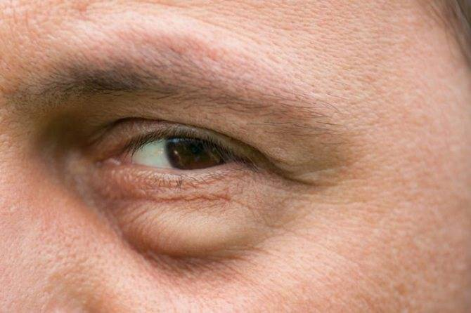 О каких болезнях говорят темные круги под глазами и как с ними справиться?
