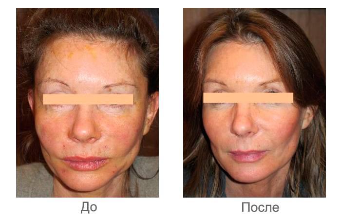 Как исправить асимметрию лица из-за неправильного прикуса и кривой челюсти?
