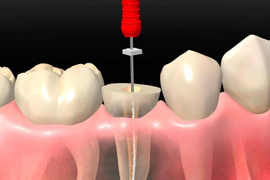 Что делать, если болит зуб после удаления нерва