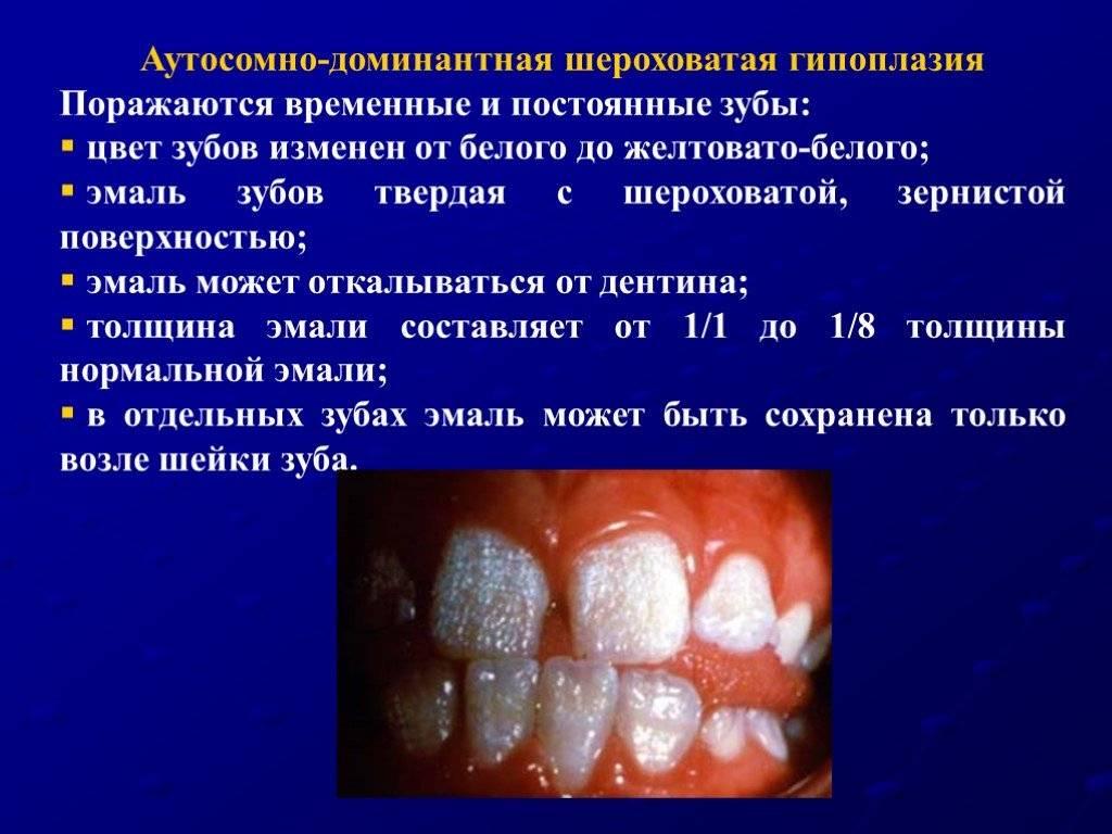 Потемнели зубы у ребенка: что делать?