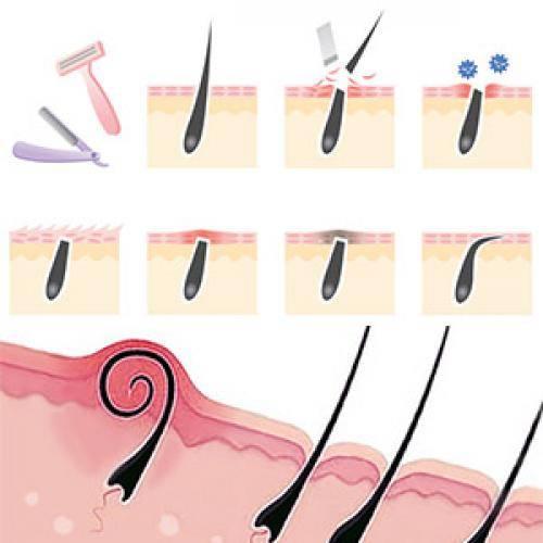 Причины появления и способы избавления от вросших волос на лобковой части