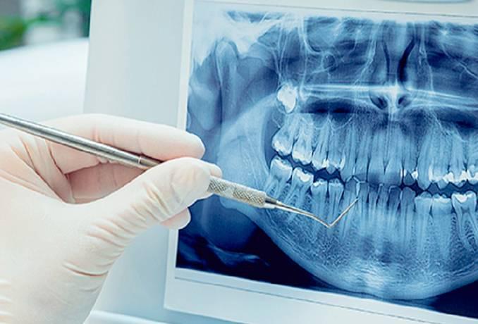 Цифровая рентгенография: преимущества и значение диагностики
