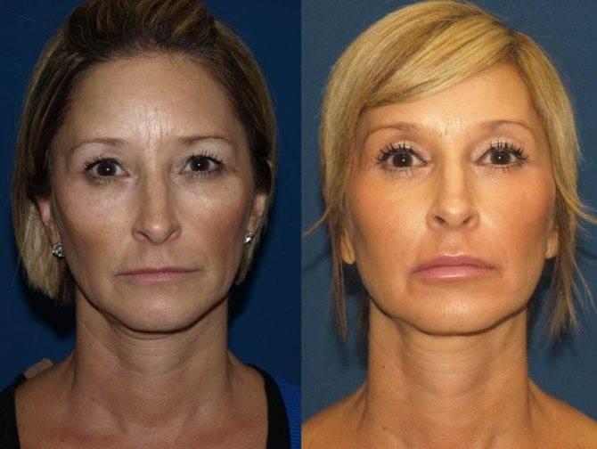 Что лучше: подтяжка лба и бровей или блефаропластика верхней части лица