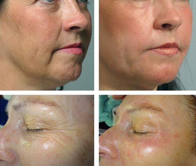 Мезотерапия – спасатель ваших глаз, за несколько сеансов вы подарите своей коже 10 лет молодости