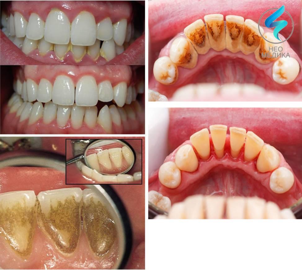 Удаление зубного камня методом ультразвука