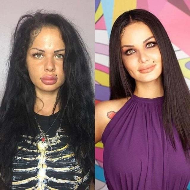 Кристина рэй до и после пластики, какие операции делала? фото до и после