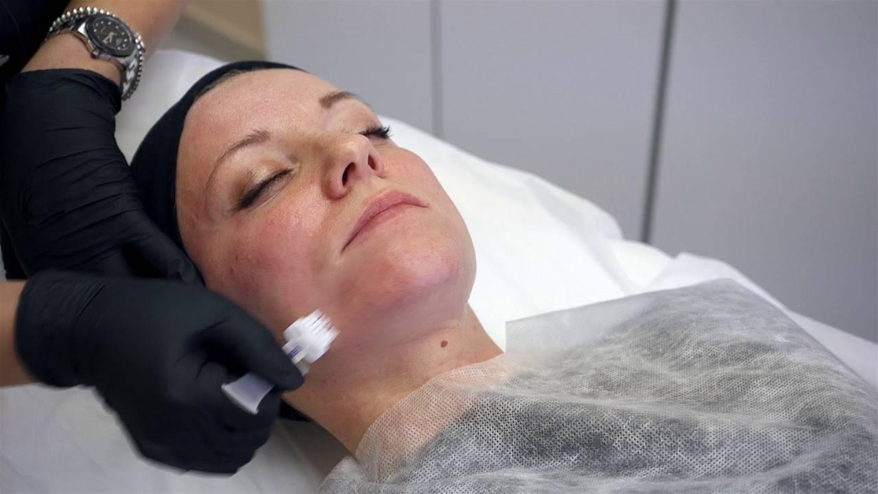 Максимум информации о тса-пилинге для лица