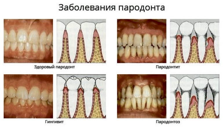Стоматолог-пародонтолог – рейтинг лучших врачей г. москвы по отзывам пациентов
