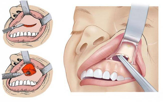 Как происходит сложное удаление зуба: что такое гайморова пазуха?