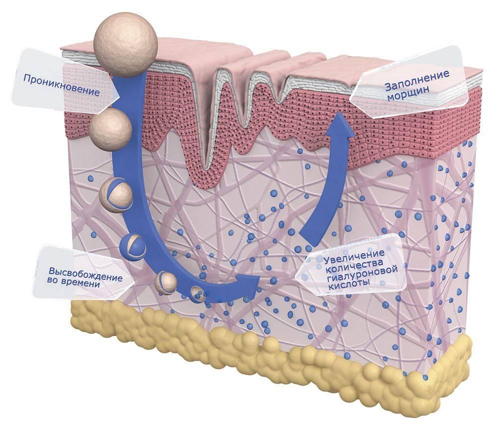 Эликсир молодости - гиалуроновая кислота в костном бульоне и моллюсках. что съесть, чтобы помолодеть