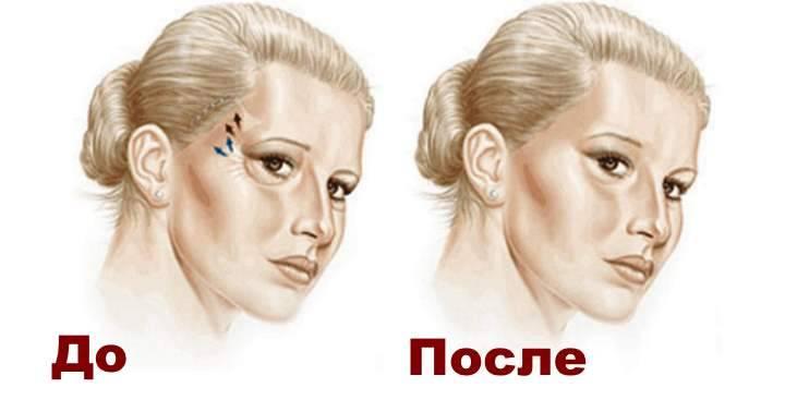 Височный лифтинг бровей – что это такое: эффективный метод омоложения верхней трети лица