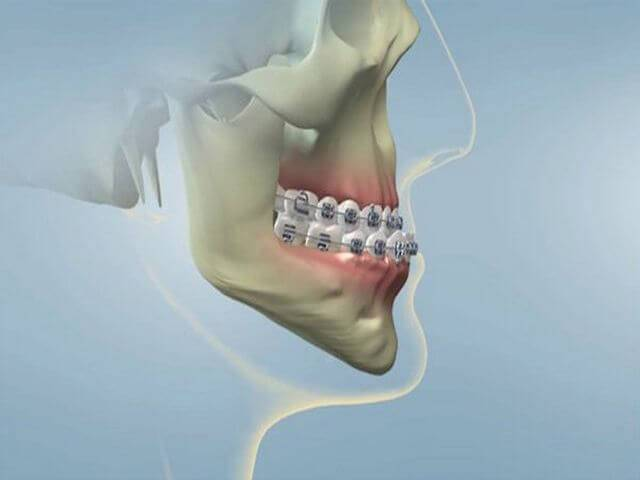 Какие опасности представляет прогенический прикус, и как не допустить осложнений