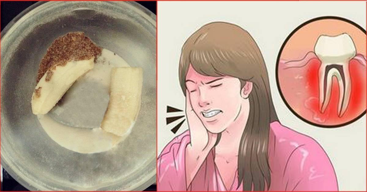 Зубная боль чем снять у взрослого