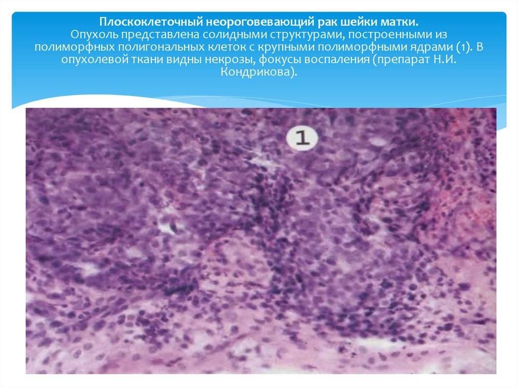 Плоскоклеточный неороговевающий рак шейки матки: что это такое
