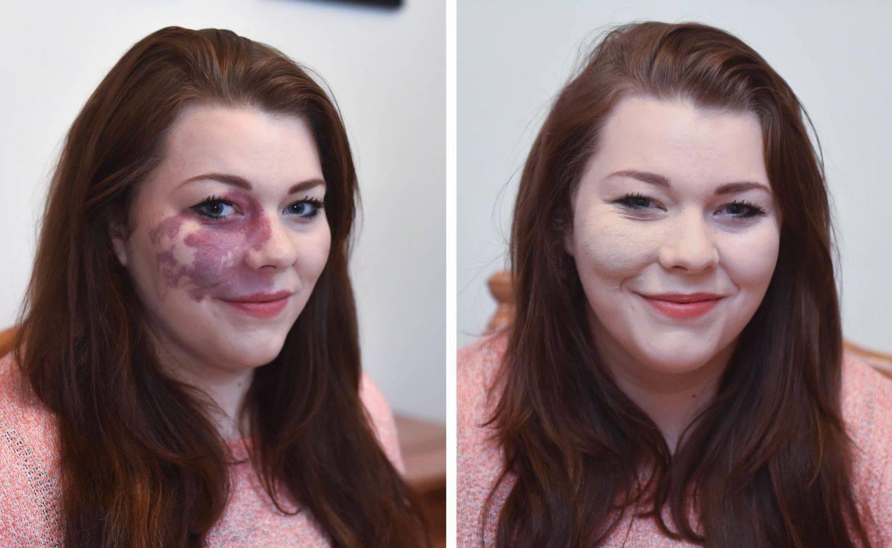 Все способы как удалить родимые пятна на лице