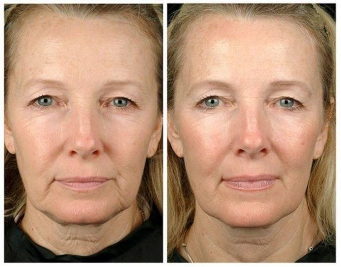 Особенности ухода за лицом в возрасте 50-60 лет