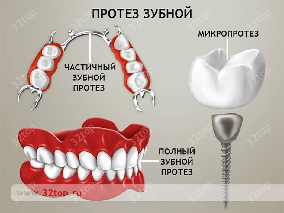 Зубное протезирование в детском возрасте.