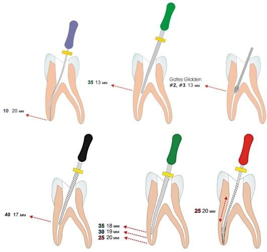 Эндодонтическое лечение в современной стоматологии