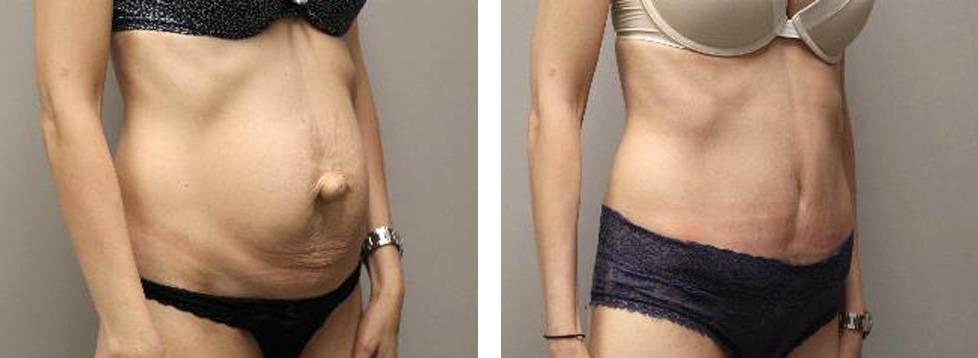 Диастаз и пупочная грыжа после родов