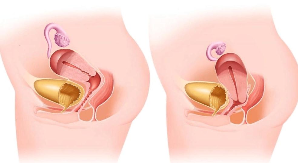 Опущение матки: методы лечения и виды операций