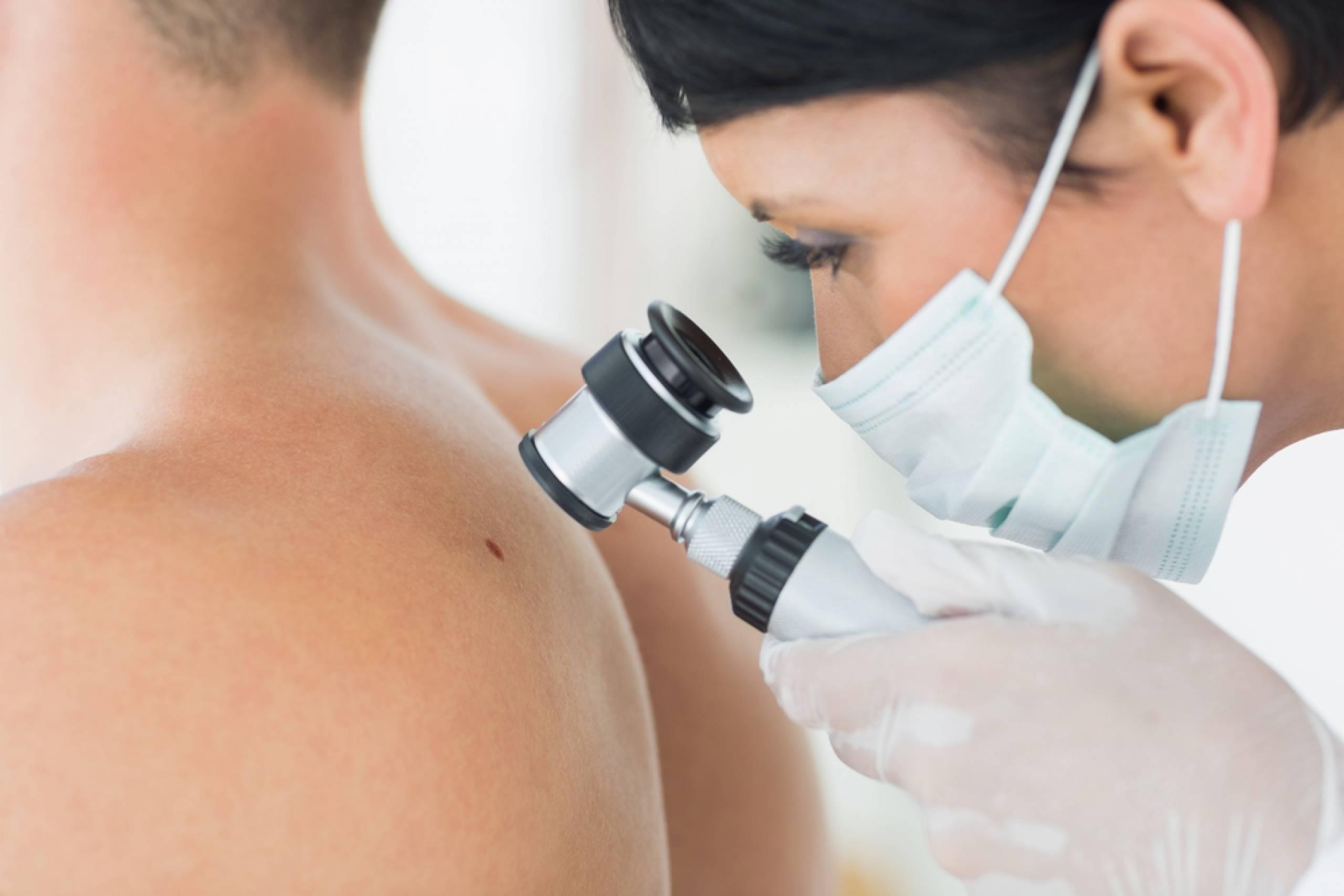 Выявление опасных новообразований при помощи дерматоскопии