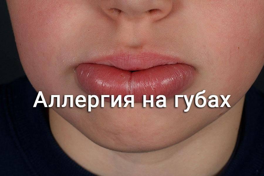 Распухли губы что это