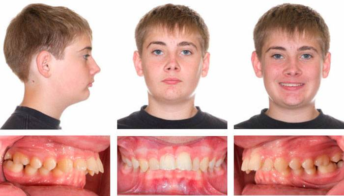 Размеры зубов: норма и аномалии