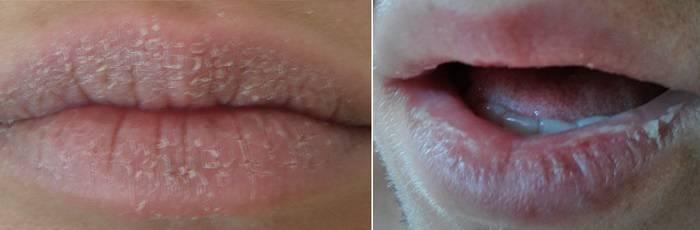Грибок на губах: виды, признаки, лечение, профилактика