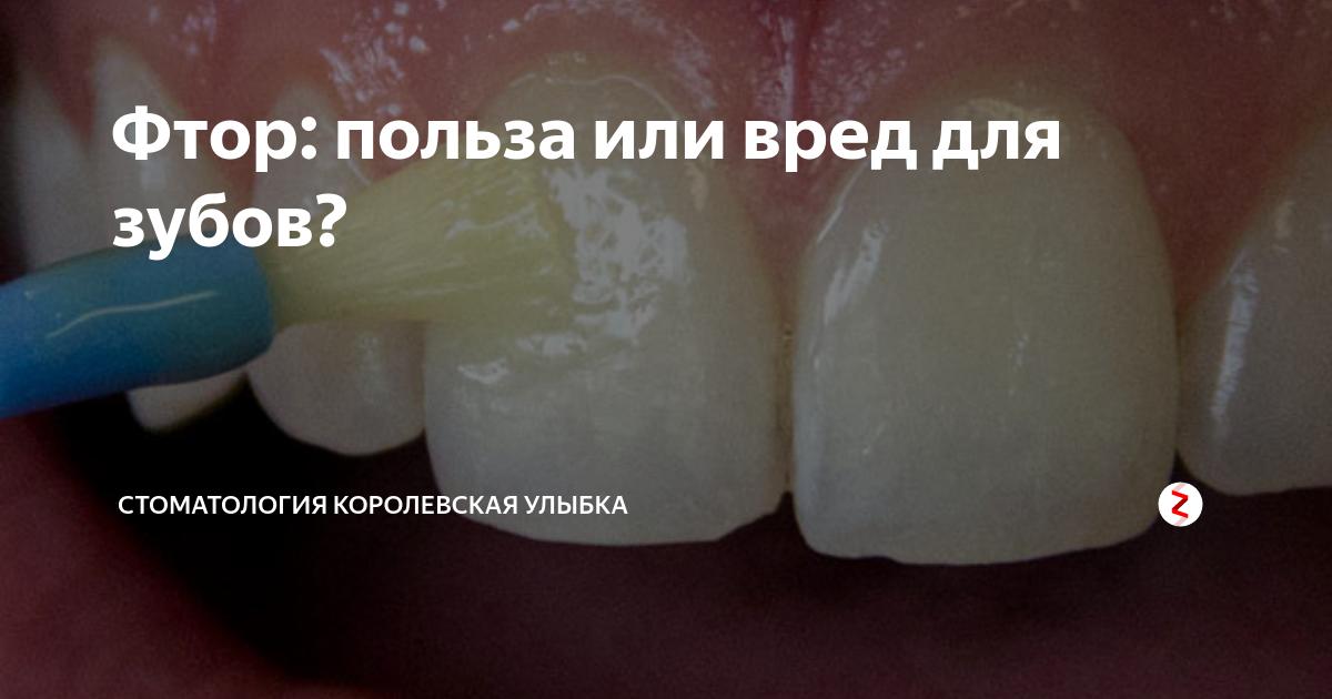 Хорошая зубная паста с фтором и без: в чем разница, чем грозит нехватка микроэлемента, польза и вред для организма