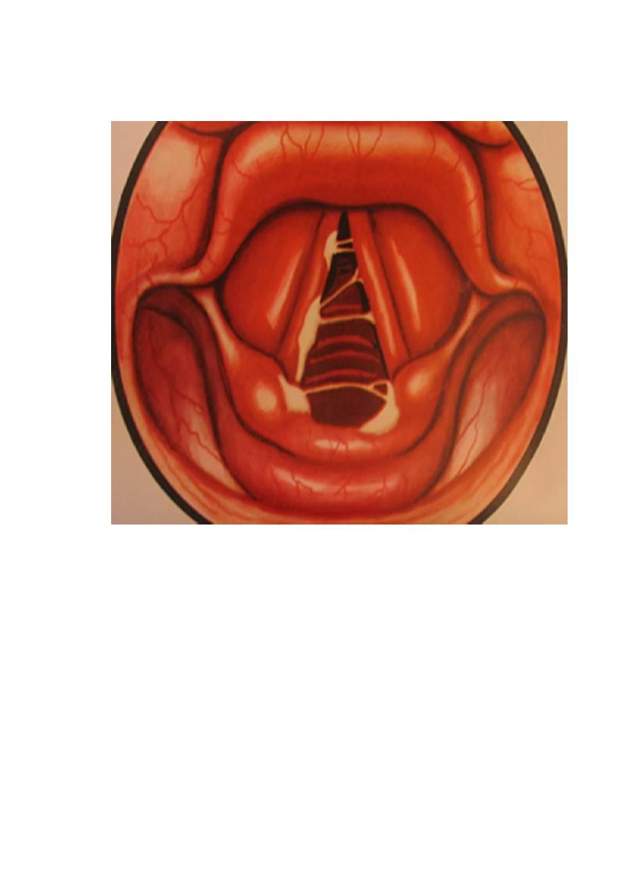 Чем лечить ожог слизистой оболочки полости рта от аммиака, кипятка, нашатырного спирта и химических веществ