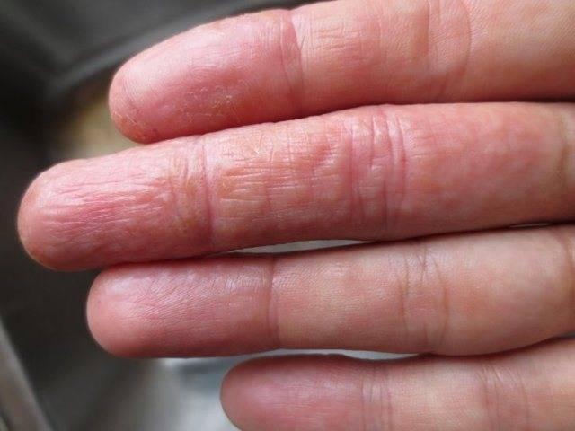 Шелушится кожа на ладонях и пальцах рук