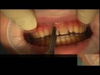 Разрез десны: особенности хирургической процедуры