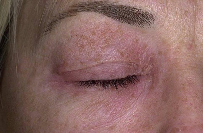 Шелушится кожа на бровях: причины и лечение