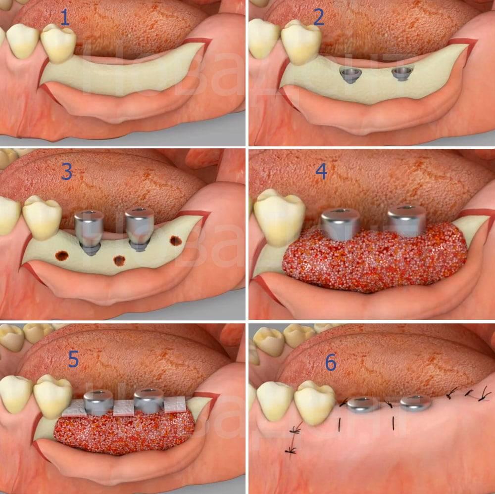 Не прижилась костная ткань при имплантации зубов