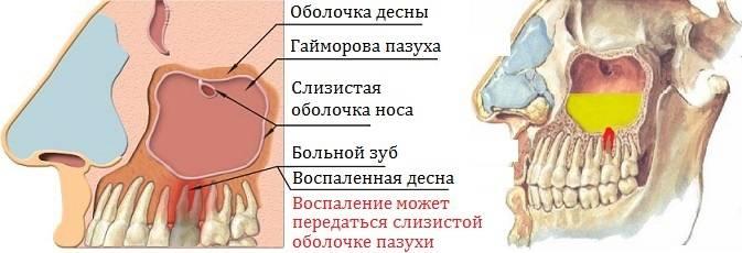Лечение одонтогенного гайморита: эффективные способы и рецепты народной медицины
