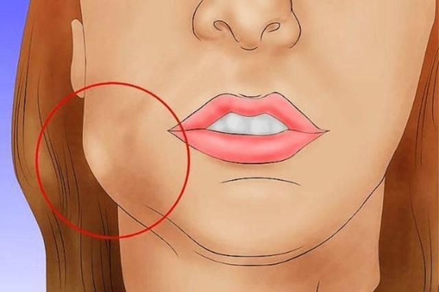Почему болит щека без боли в зубах