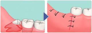 Больно ли снимать швы на деснах после удаления зуба мудрости, сколько длится процесс рассасывания?