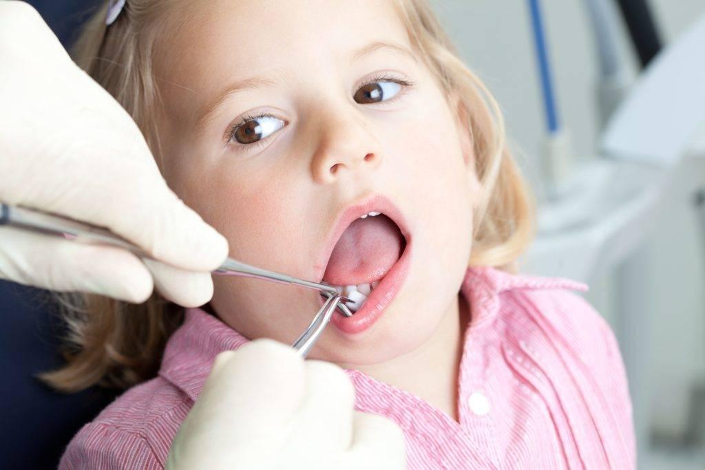 Кровоточивость десен у детей: причины, лечение, профилактика