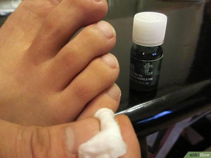 Масло чайного дерева от грибка на ногтях и коже