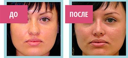 Ринокоррект альтернатива пластическим операциям: безоперационная коррекция формы носа — безоперационная коррекция носа