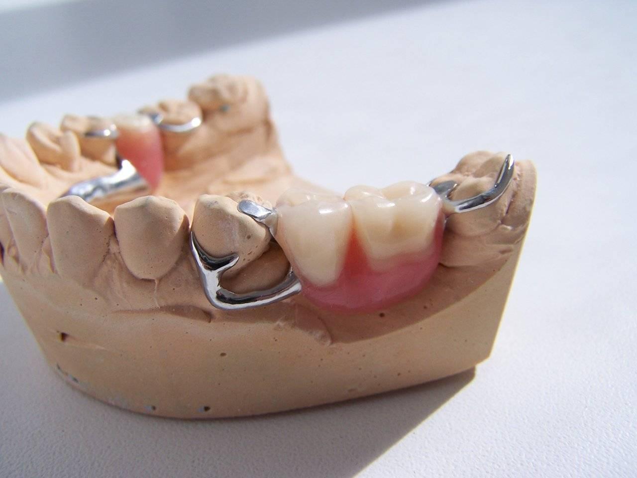 Кламмеры в ортодонтии: классификация и особенности некоторых видов – адамса, роуча, джексона и других
