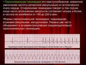 Почему возникают боли в области сердца перед менструацией