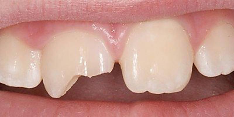 Народные приметы про зубы